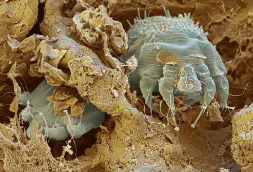 Scabies Mites Tunneling Through & Eating Human Skin